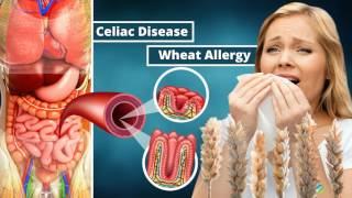 Gluten Free Diet: Will It Help You To Lose Weight?