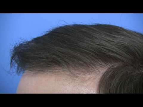 Hair Transplant by Dr Wong - 5864 Grafts
