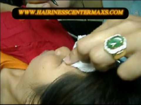 ลบคิ้ว ลบรอยสัก  WWW.HAIRINESSCENTERMAXS.COM