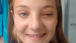 Insurance company offers girl $8 for detached retina injury