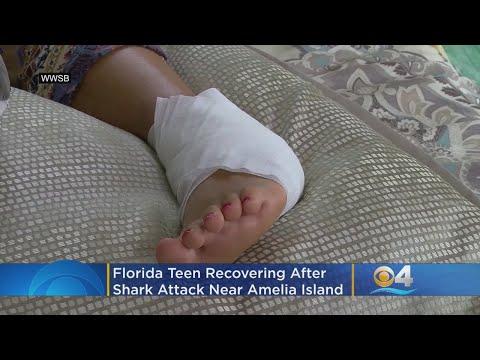 Florida Teen Recovering After Shark Attack Near Amelia Island