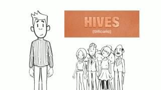 Chronic Urticaria | Hives Treatment