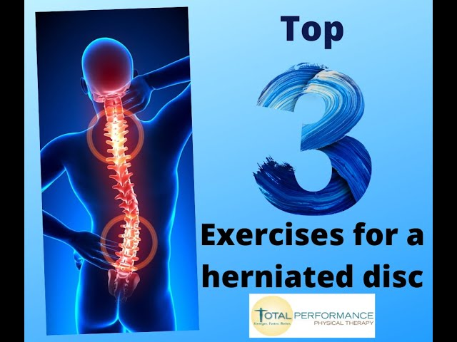 Top 3 Exercises for a herniated disc