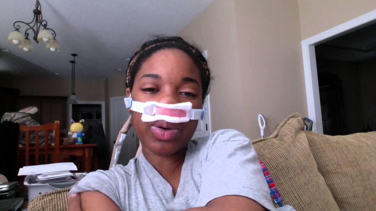 Day 2: Post op Sinus Surgery with Balloon Sinuplasty & Adenectomy