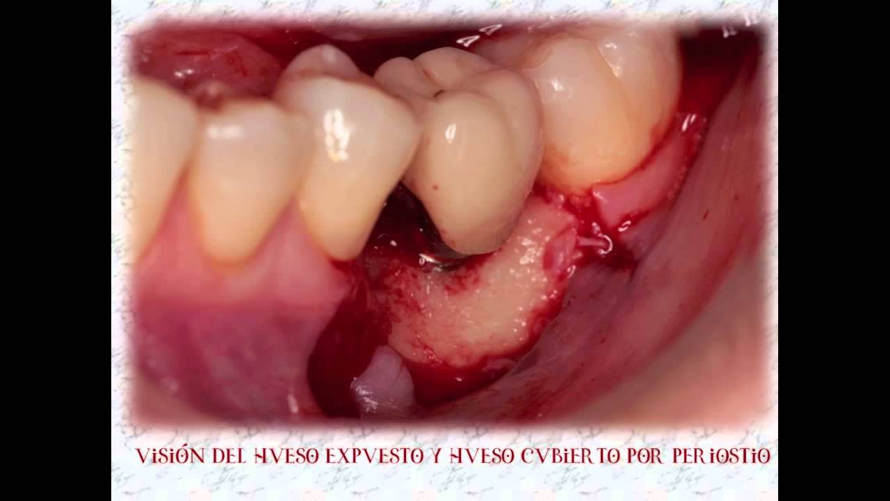 What is a tooth granuloma 54