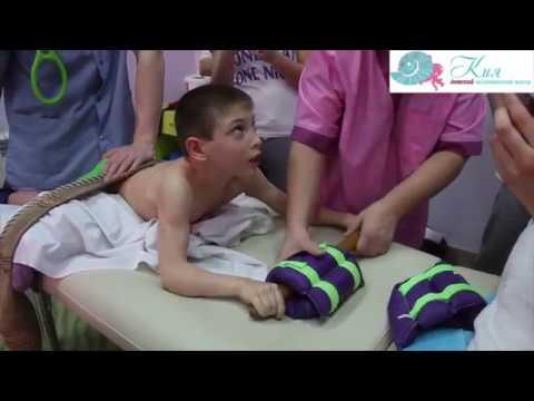 Детский церебральный паралич (ДЦП) - Причины, симптомы и
