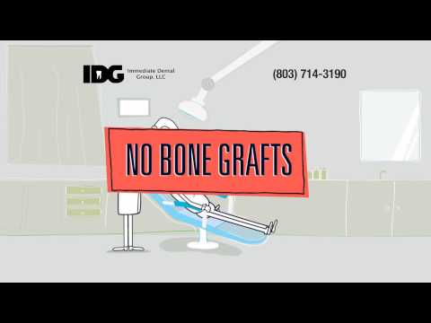 Mini Dental Implants Columbia South Carolina