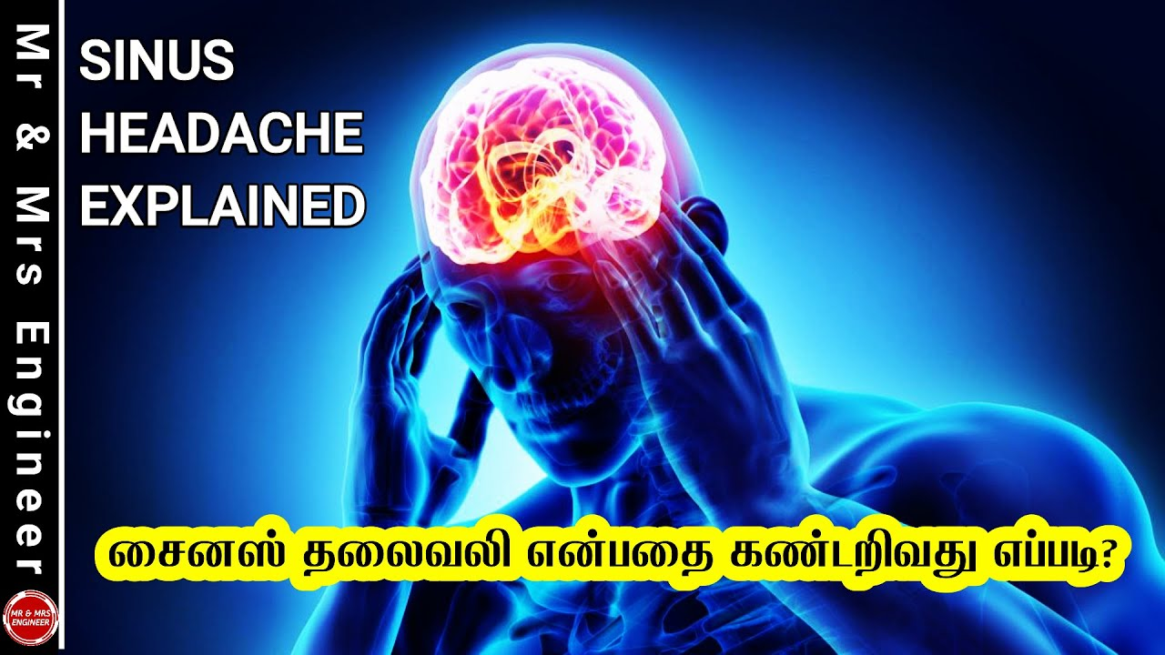 சைனஸ் தலைவலி என்பதை கண்டறிவது எப்படி? Sinus Headache Explained   Headache Reasons in Tamil