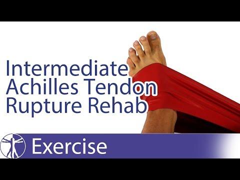 Intermediate Achilles Tendon Rupture Repair Rehab