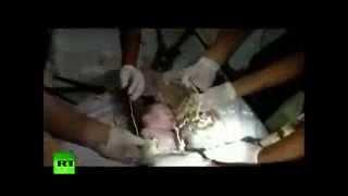 Neonato gettato nel water: Il video dei soccorsi