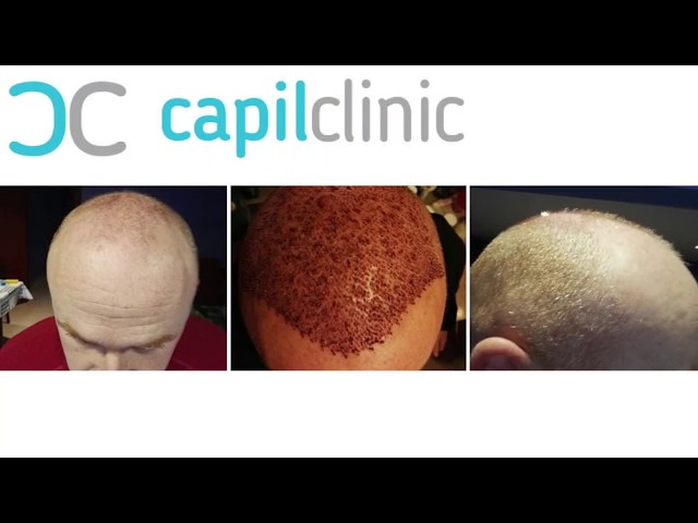 Hair Transplant in Turkey - Capilclinic - Real results