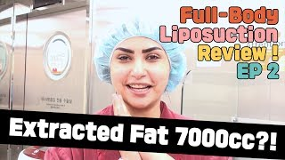 [Liposuction Review02] UAE Youtuber's Full Body Liposuction in Korea - Episode 2