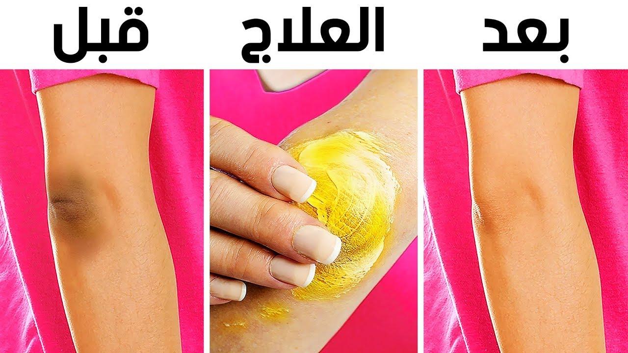 10 حيل طبيعية للتخلص من سواد الركبتين والكوعين
