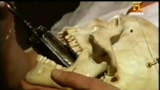 La pera de la angustia - Tortura de la antigüedad