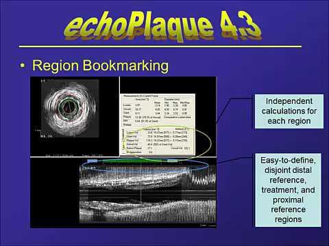 echoPlaque 4 Introduction