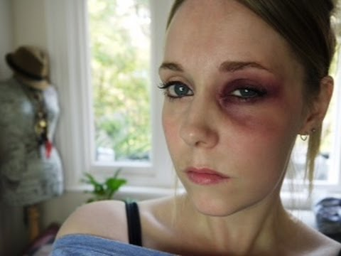 how to make a swollen black eye with makeup