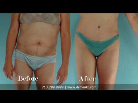Liposuction & Body Contouring, Dr. Henry Mentz, Board-Certified Plastic Surgeon, Houston, Texas