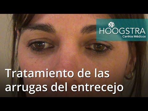 Tratamiento de las arrugas del entrecejo (16160)