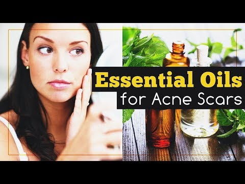 best-essential-oils-for-acne-scars