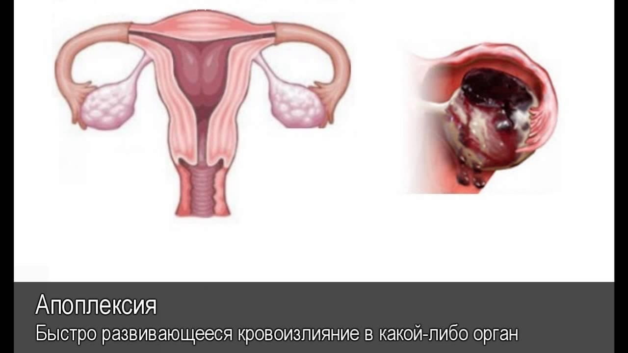 Формы апоплексии яичника