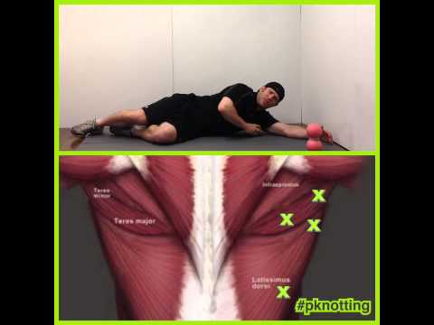 P-Knotting the Teres Major and Latissimus Dorsi