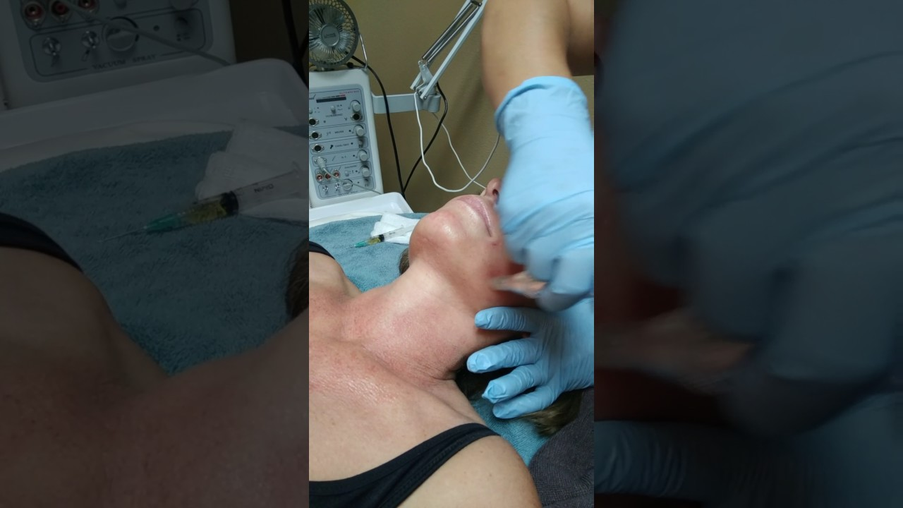 Microneedling with PRP - Dr  James A  Matas - Orlando, FL Plastic Surgeon