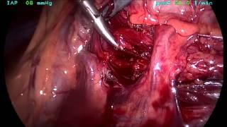 How To Do A Laparoscopic Pyeloplasty For Pelviureteric Obstruction