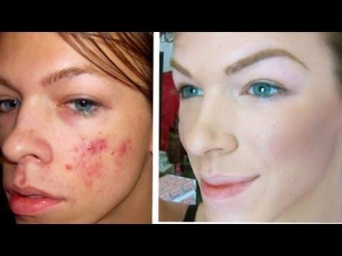Full coverage acne foundation using Bare Minerals