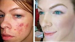 hqdefault - Bare Essentials Causes Acne