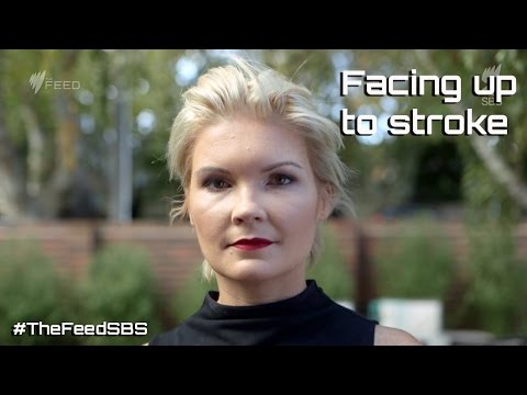 Facing Up To Stroke - The Feed