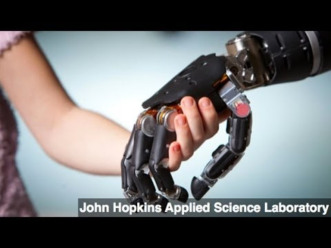 New Prosthetic Limb Provides Sense of Touch