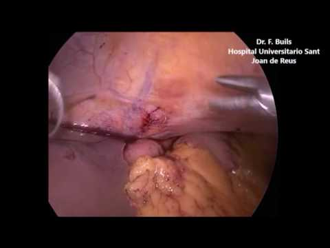 LAPAROSCOPIC TREATMENT FOR PERFORATED BLEEDING GASTRIC ULCER