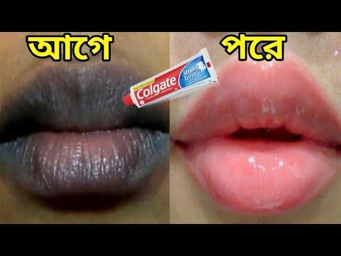গোলাপি ঠোঁট পাওয়ার উপায়,মাত্র তিন মিনিটে কালো ঠোঁট গোলাপি করার উপায়/How to make black lips pink