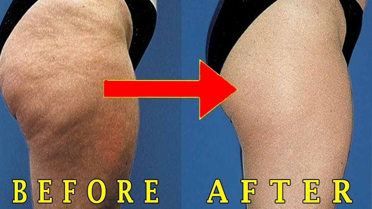 How to lose thigh fat fast overnight