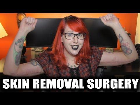 I Had Surgery BrachioplastyAbdominoplasty Skin Removal