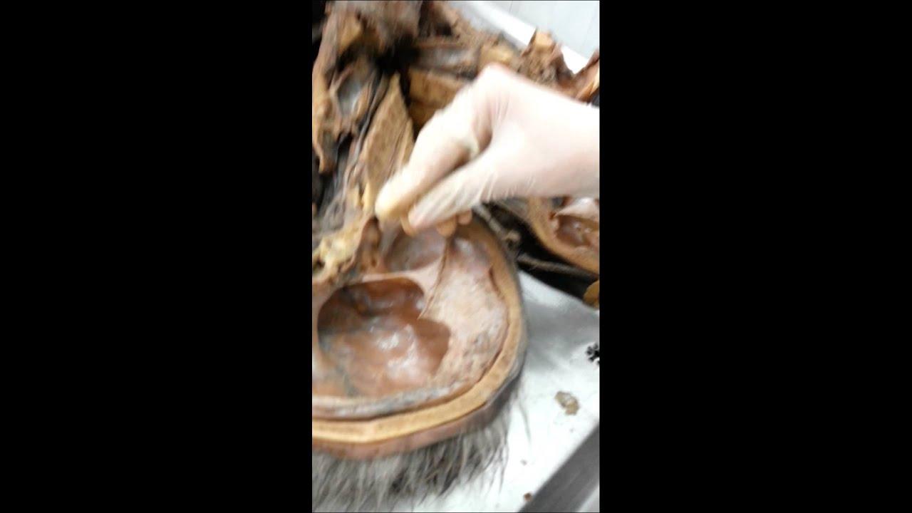 Senos del Cráneo Humano Anatomia - YouTube