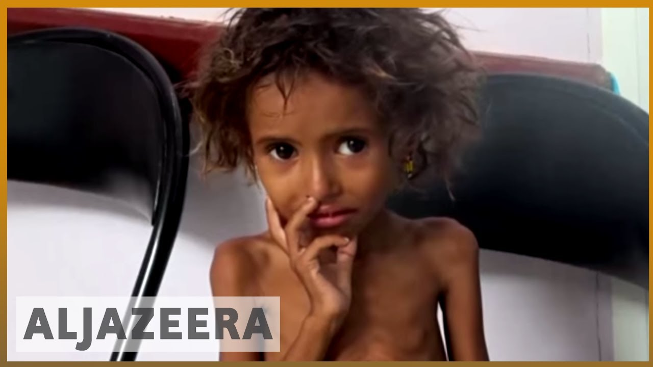 🇾🇪 'We're cooking leaves': Civilians caught in Yemen | Al Jazeera English