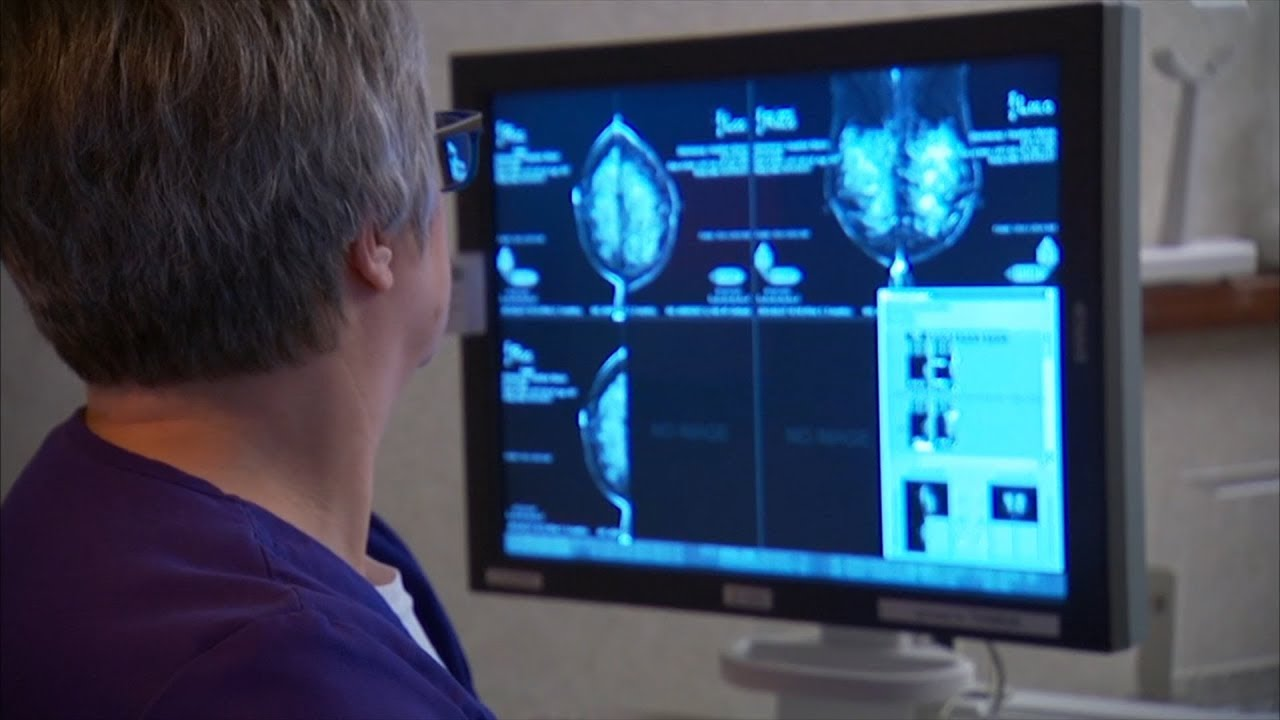 Mayo Clinic Minute: Breast cancer is not 1-size-fits-all