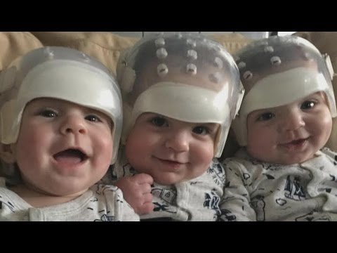 Rare Triplets Born With Same Genetic Condition Undergo Successful Skull Surgery
