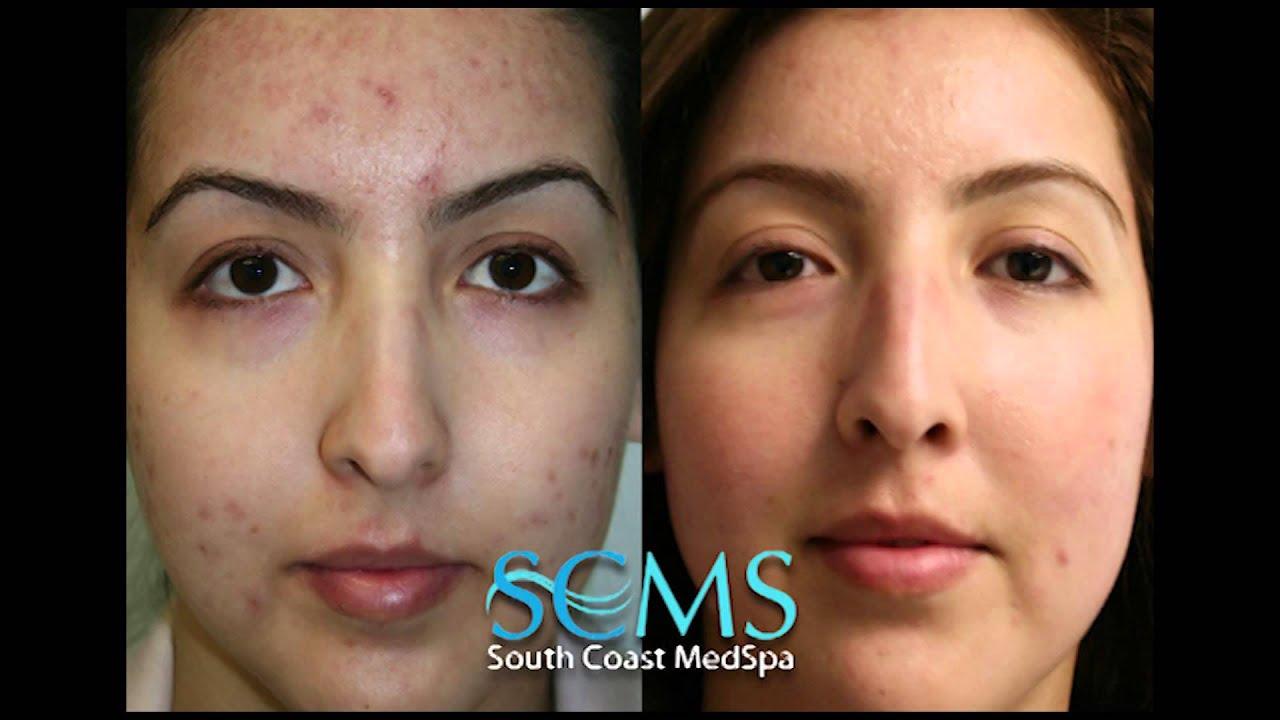 Laser Acne Scar Removal Before After Female Olive Skin Smcs