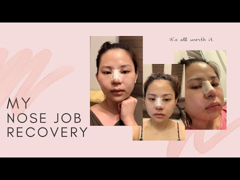 MY NOSE JOB RECOVERY | PHILIPPINES