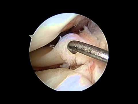 Lateral Meniscus Repair