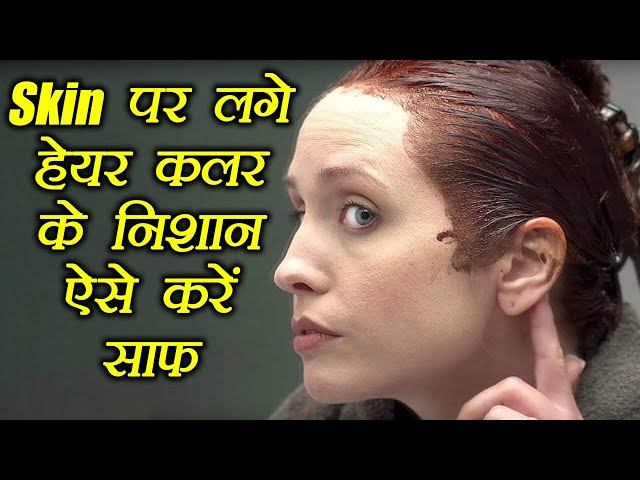Skin ?? ??? ???? ??? ?? ????? ??? ???? ???, How to get hair dye off your skin | Boldsky