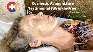 Cosmetic Acupuncture (Wrinkle Improvement) Testimonial