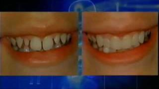 Cosmetic Dentist Dr. Ross W. Nash demonstrates direct Porcelain Veneer restorations Thumbnail