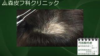 動画による皮膚病の解説 第4回 【円形脱毛症】 thumbnail