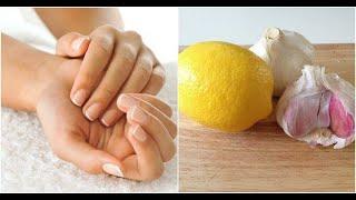 마늘과 레몬으로 손톱을 강화하는 방법
