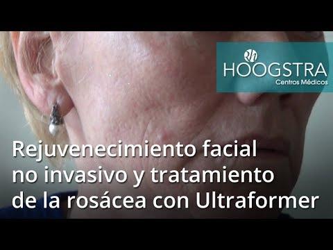 Rejuvenecimiento facial No invasivo y tratamiento de la Rosacea con Ultraformer (18049)