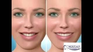 Ортодонтия. Исправление прикуса(, 2016-10-14T09:00:11.000Z)