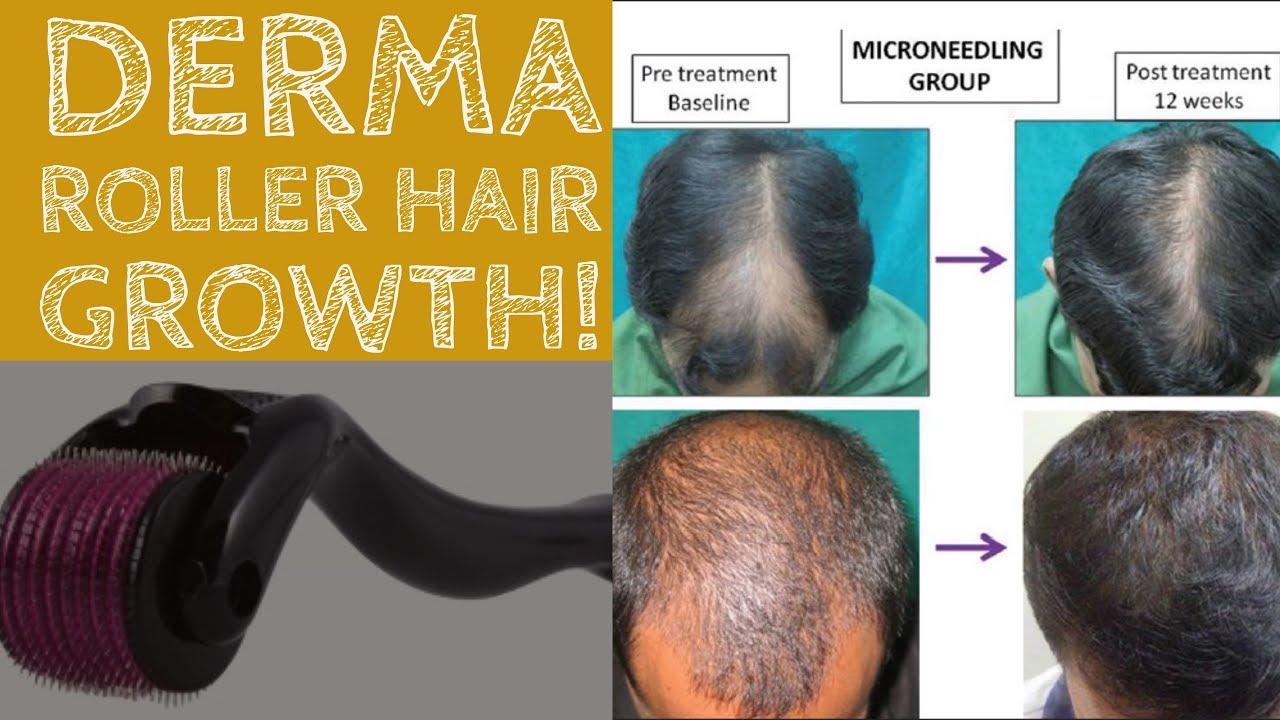 do derma rollers work
